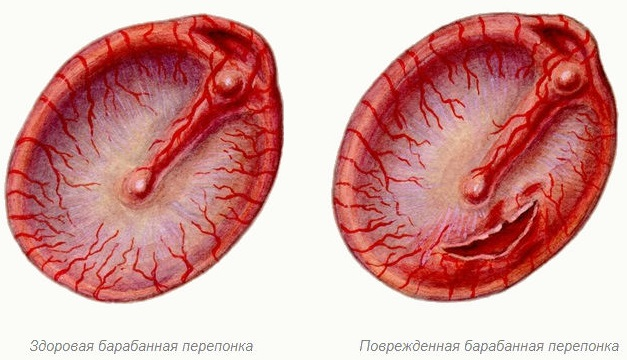 Отит среднего уха. Симптомы и лечение. Антибиотики, народные средства, прогревание. Последствия