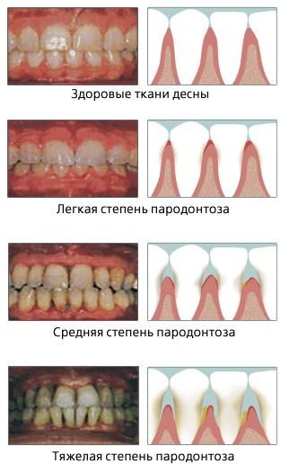 Парадонтоз. Как спасти зубы, лекарства, народные средства, лечение
