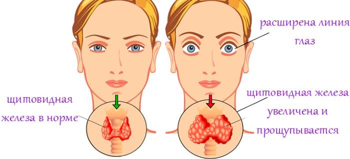 Повышенные лимфоциты в крови у женщин. Причины, норма по возрасту, лечение