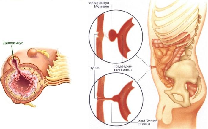Пупочная грыжа у новорожденных. Симптомы и лечение, причины, клинические рекомендации