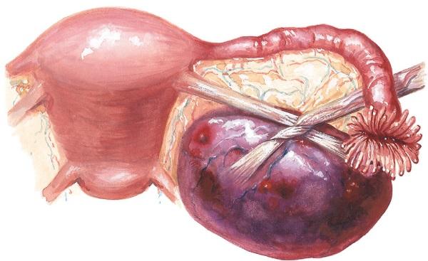 Расположение яичников у женщин относительно пупка, кишечника, размеры в норме, заболевания