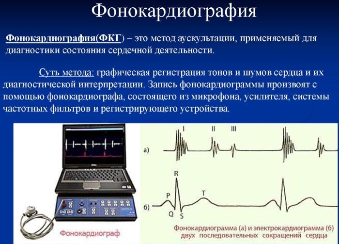 Расшифровка ЭКГ у взрослых. Норма: синусовый ритм, параметры, патологии