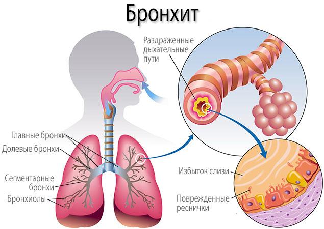 Ципрофлоксацин. Инструкция по применению (раствор для инфузий, капли, таблетки). Цена, аналоги