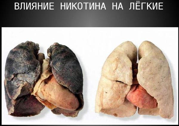 Вред курения на организм человека: мужчины, женщины, при беременности, детей