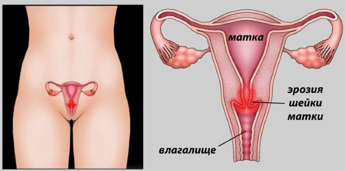 Женские болезни по гинекологии. Названия, симптомы и лечение, признаки