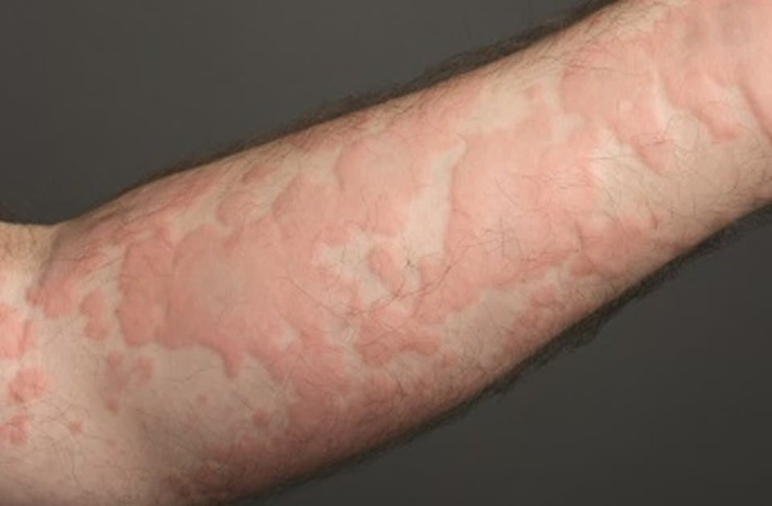 Аллергия, раздражение, сухость кожи, волдыри на лице, руках, теле. Фото и лечение у взрослых