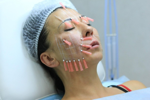 Асимметрия лица. Причины и лечение у взрослых, как исправить, физиогномика