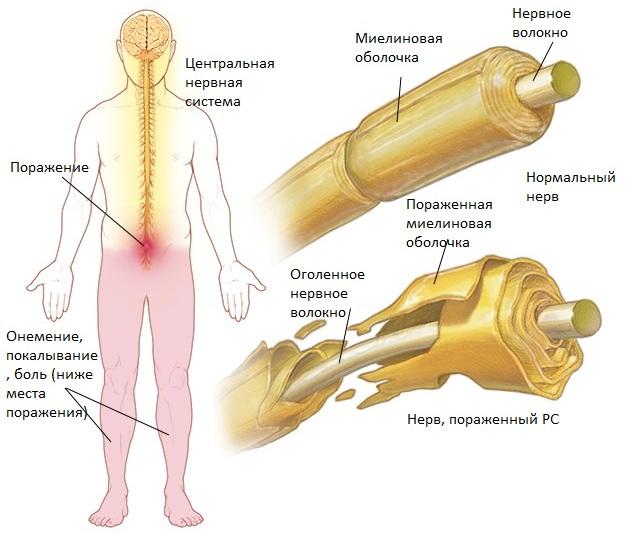 Блуждающий нерв. Симптомы и лечение, что это, где находится, диагностика