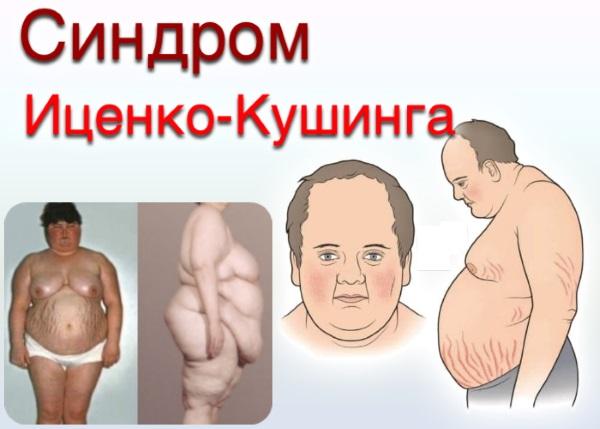 Диффузные изменения печени и поджелудочной железы. Что это такое, типы, причины и лечение, диета