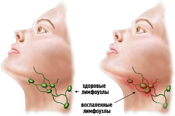 Норма лимфоцитов в крови у женщин. Почему показатели повышенные, понижены