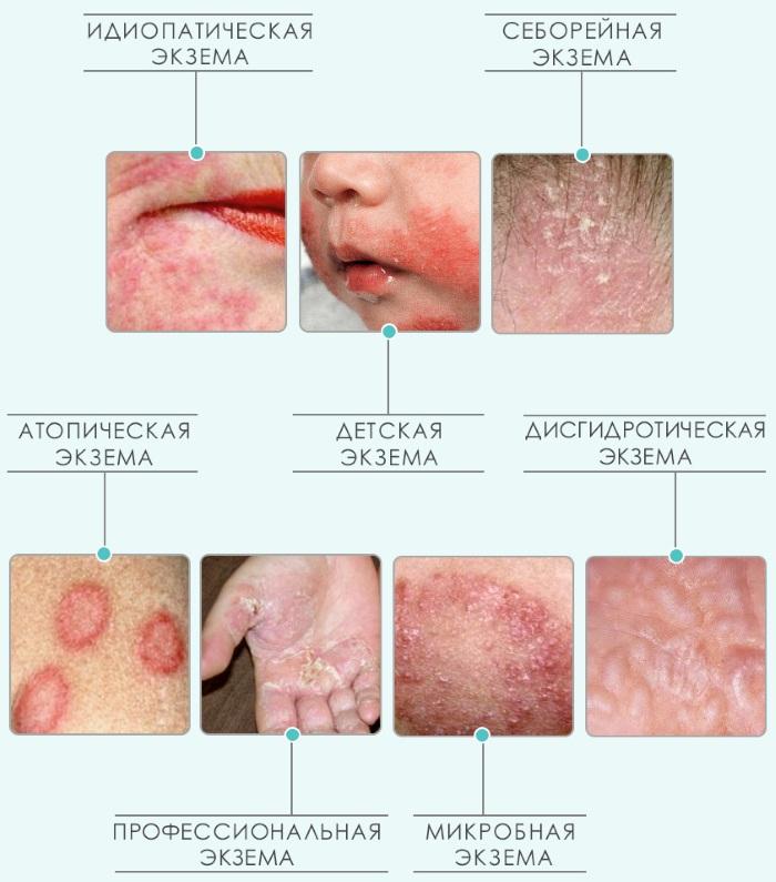 Экзема. Симптомы и лечение на ногах и руках, лице, в уголках губ. Народные средства, препараты
