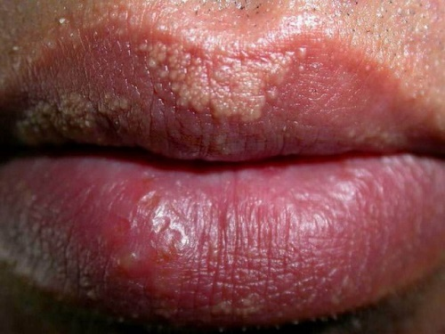 Гранулы Фордайса на губах. Фото, причины, симптомы, лечение, как избавиться