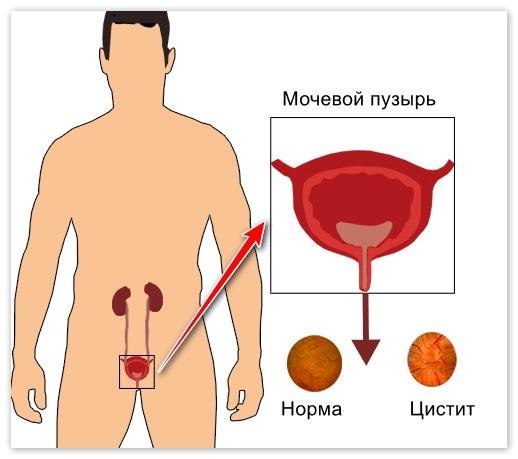 Грушанка. Лечебные свойства в гинекологии для женщин, мужчин в народной медицине. Как принимать, противопоказания