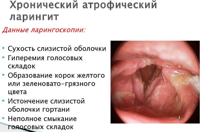 Ларингит у взрослых. Схема лечения, лекарства, антибиотики, народные средства