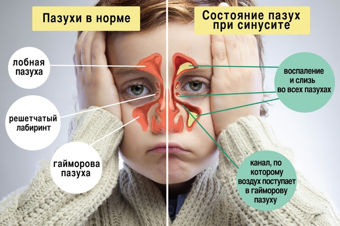 Как остановить кровь из носа у ребенка после удара, при температуре. Причины, рекомендации врачей