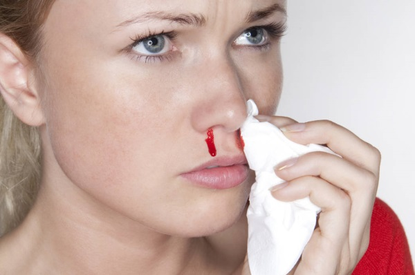 Как остановить кровь из носа у ребенка, взрослого. Первая помощь при кровотечении в домашних условиях