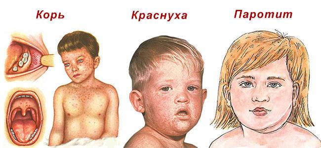 Коревая краснуха у ребенка. Симптомы, стадии, фото, лечение. Профилактика у детей