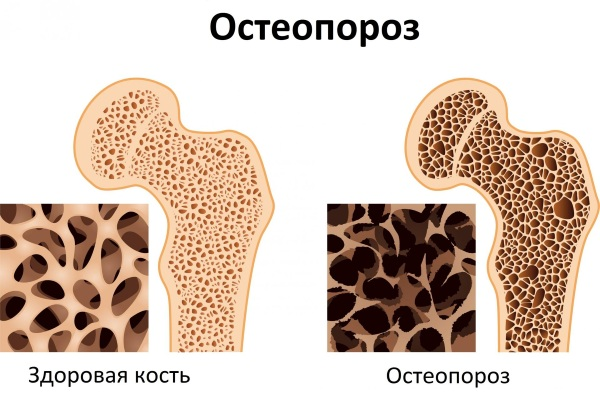 Менопауза определение и виды