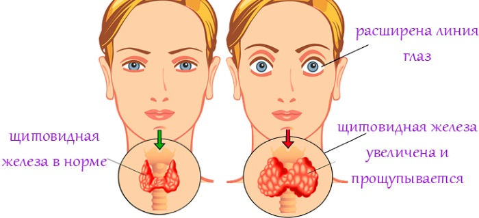 Проблемы с щитовидкой. Симптомы у женщин, мужчин, причины возникновения, лечение
