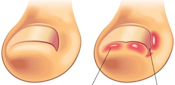 Заболевания ногтей на ногах. Признаки, фото, лечение грибка, инфекции, онихомикоза