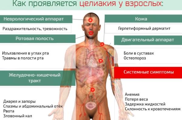 Аллергия на глютен. Симптомы у взрослых, как проявляется, анализы, лечение, что есть нельзя