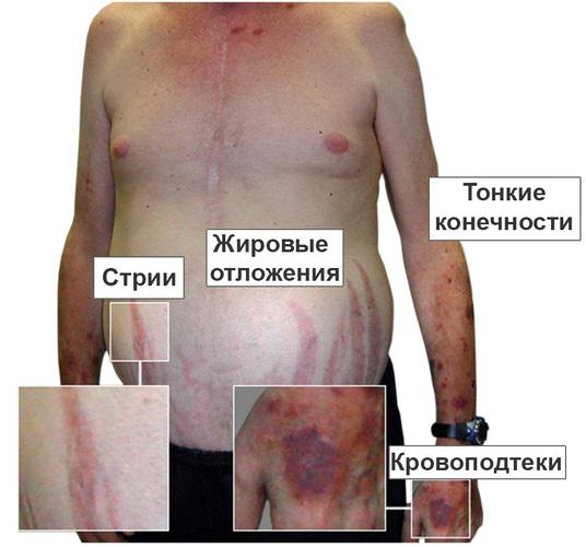 Болезнь Кушинга. Симптомы у женщин, фото, лечение. Диета, народные рецепты