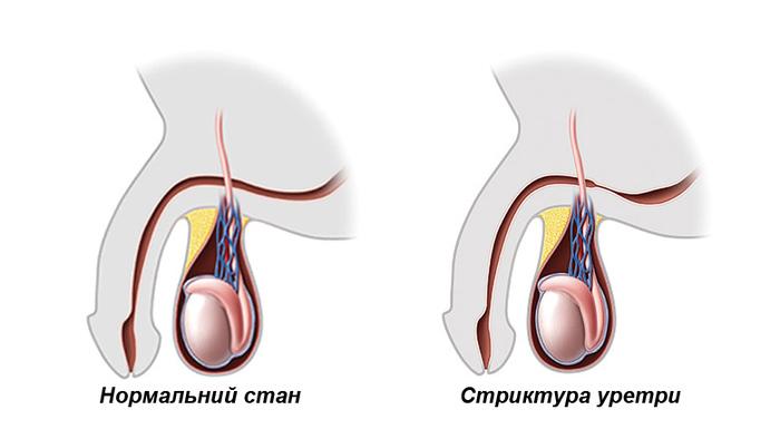 Болезни, передающиеся половым путем. Инфекционные, венерические, смертельные. Симптомы и лечение