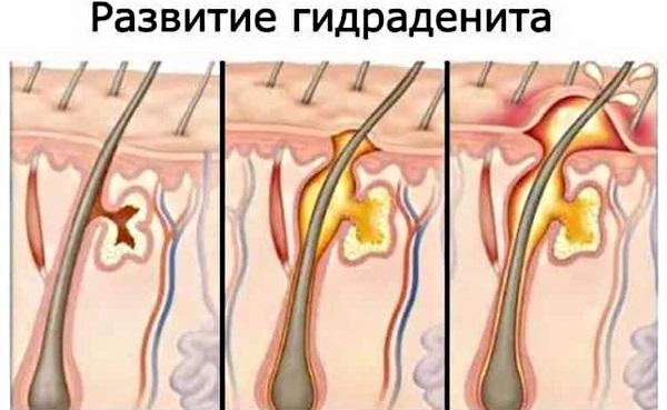 Болит подмышкой слева-справа у женщин при нажатии, отдает в руку, воспалился лимфоузел, уплотнение. Причины, лечение