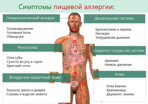 Эритема. Что это такое, фото, симптомы и лечение. Многоформная, узловатая, эритематозная сыпь