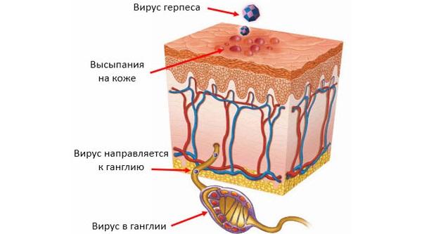 Лечение герпеса на носу в домашних условиях. Препараты, народные средства