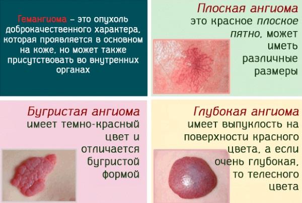 Красные родинки на теле у мужчин и женщин. Что это значит, причины и лечение