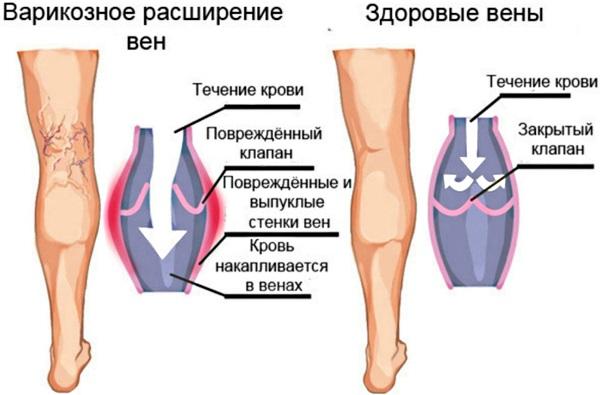 Мази от варикоза вен на ногах. Список, цены, лучшие при беременности