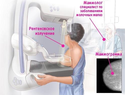 Опрелости под молочными железами. Лечение у пожилых, при диабете, лежачих больных. Мази, народные средства