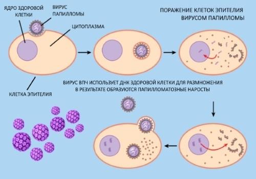 Папилломавирус у женщин в гинекологии. Причины, симптомы, лечение