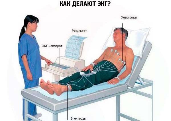 Боль в грудной клетке при кашле с левой, правой стороны, посередине. Что это, причины, лечение