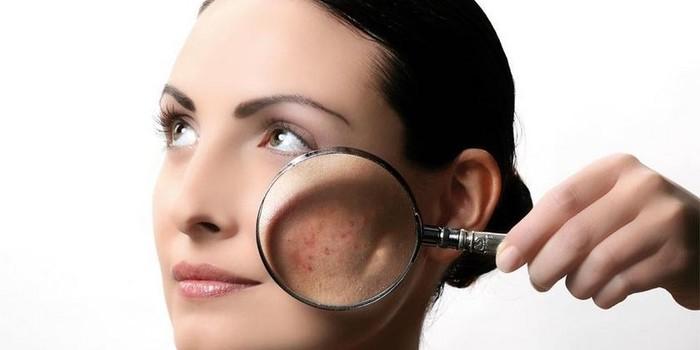 Средство от себореи кожи головы в аптеке