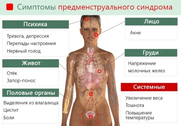 Предменструальный синдром. Симптомы у женщин, что это такое, лечение, за сколько дней до месячных начинается