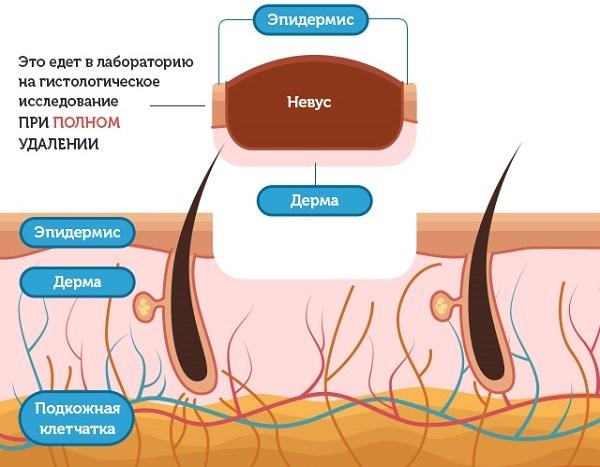 Шишка под кожей на руке, шее, лице, спине. Фото высыпания в виде бугорков. Причины и лечение