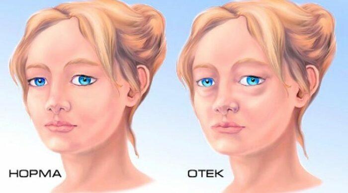 Гельминтоз у взрослых. Симптомы на коже, виды, стадии, лечение, народные средства