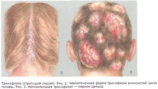 Стригущий лишай у человека. Фото, признаки, стадии, лечение народными средствами, препараты