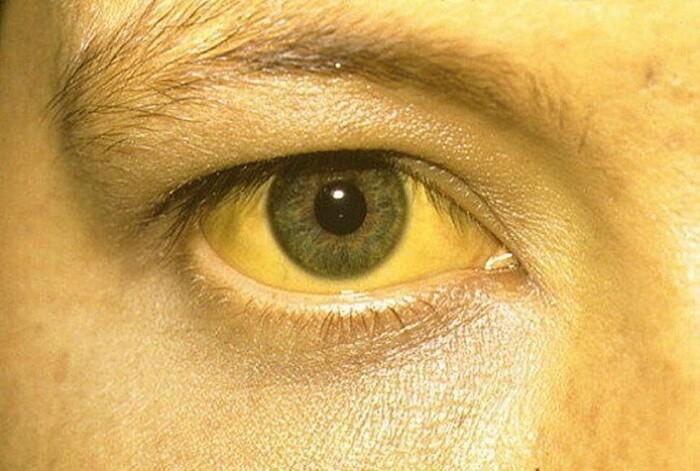Почему у больного раком желтеет кожа