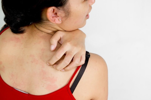 Кожные аллергические заболевания