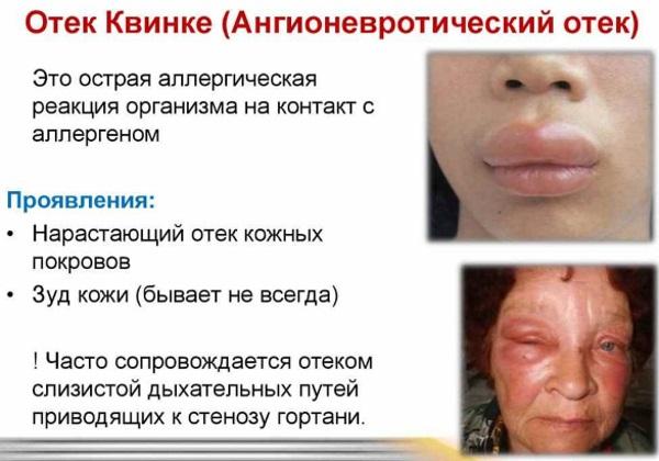 Ангионевротический отек. Что это такое, симптомы, лечение у взрослых, детей, рекомендации