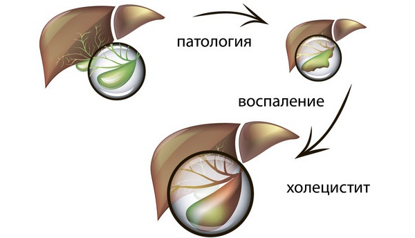 Боль под левой грудиной у женщин спереди при дыхании, движении, нажатии, после еды. Причины и что делать