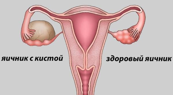 Фолликулы в яичниках. Норма количество в 30-40-50 лет, при беременности, менопаузе, размеры