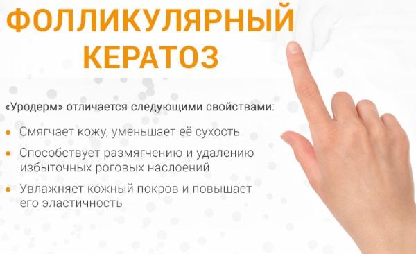 Фолликулярный кератоз у ребенка. Признаки, фото, симптомы и лечение