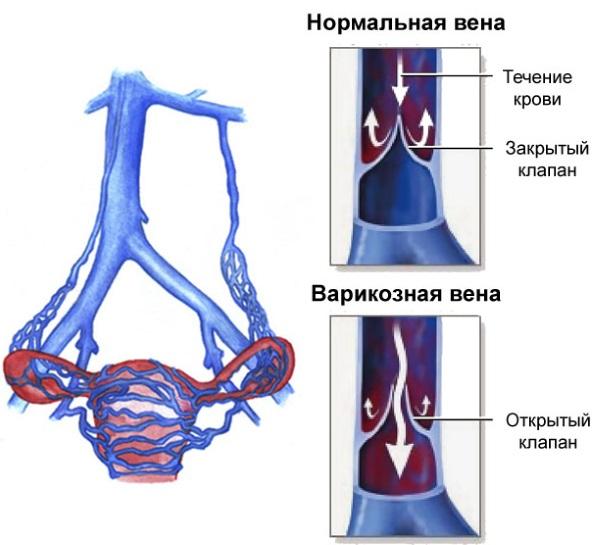 Хронический аппендицит у женщин. Симптомы, диагностика, лечение