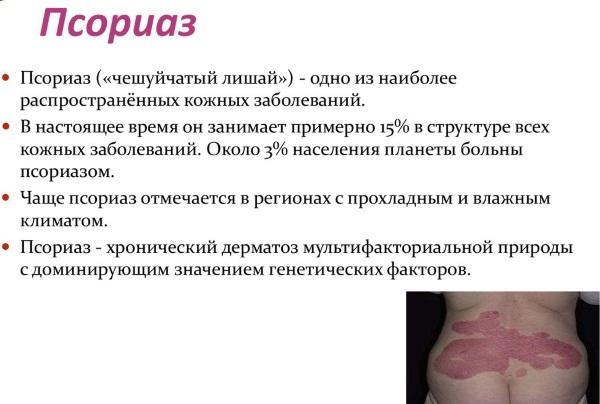 эко пульс от псориаза