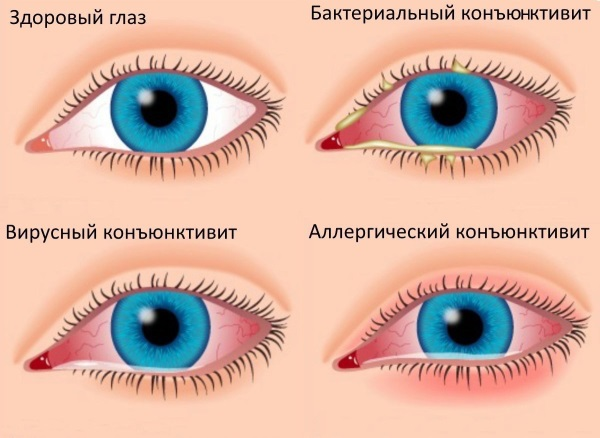 Болит глаз, как будто давит изнутри, видит хуже, больно закрывать, открывать. Лечение