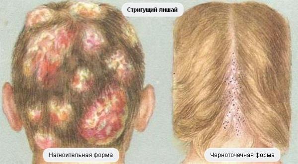 Лишай на голове у ребенка. Фото, признаки, причины и лечение